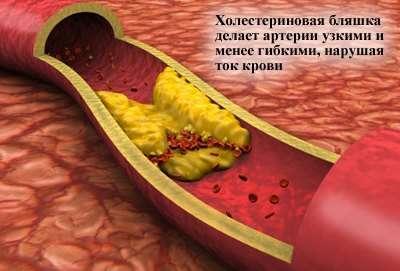 Гіперхолестеринемія: симптоми і лікування