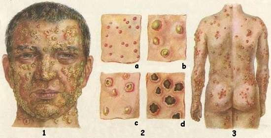 Віспа: симптоми і лікування