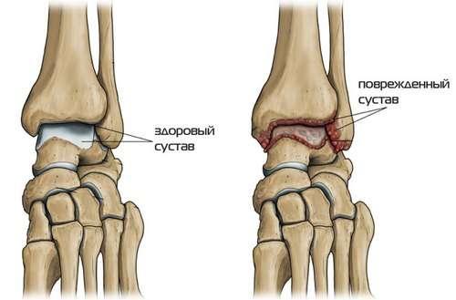 Остеоартроз гомілковостопного суглоба: симптоми і лікування