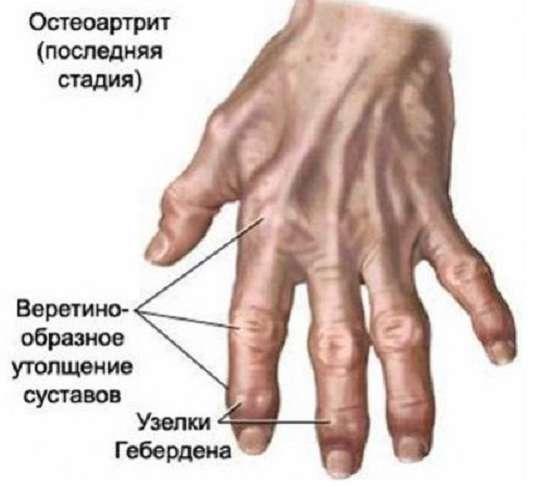 Остеоартроз: симптоми і лікування