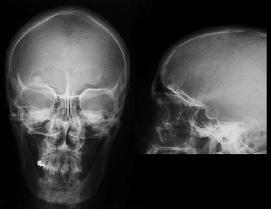 Рак кісток: симптоми і лікування