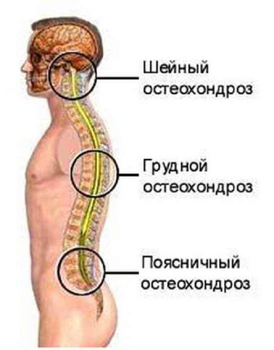 Поперековий остеохондроз: симптоми і лікування