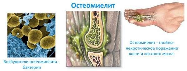 Гострий остеомієліт: симптоми і лікування