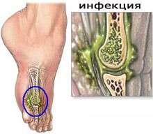 Остеомієліт: симптоми і лікування