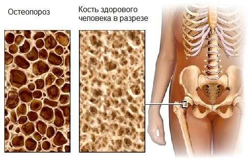 Синдром Кушинга: симптоми і лікування