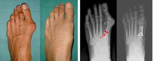 Поперечна плоскостопість: симптоми і лікування