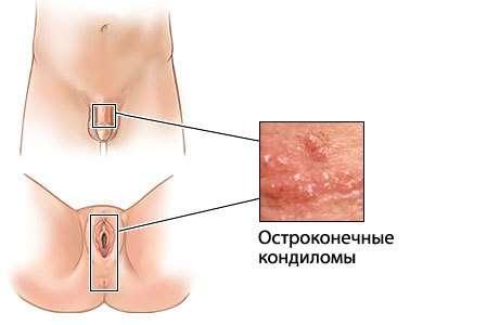 Папіломатоз: симптоми і лікування