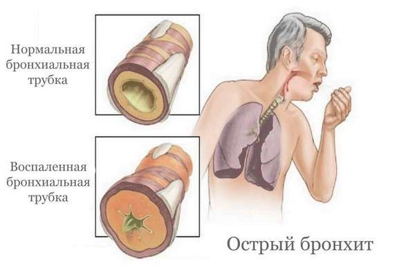 Гострий бронхіт: симптоми і лікування