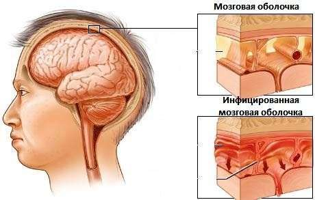 Набряк головного мозку: симптоми і лікування