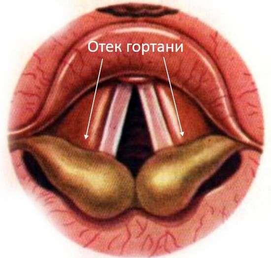Набряк гортані: симптоми і лікування