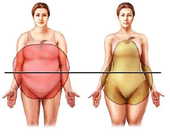 Ожиріння : симптоми і лікування