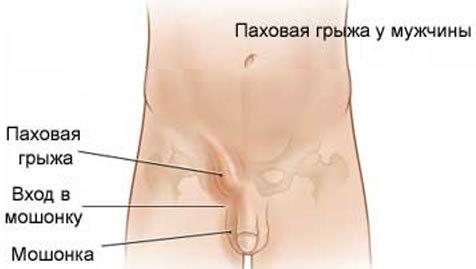 Пахова грижа у чоловіків: симптоми і лікування