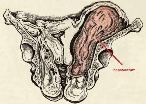 Параметрит: симптоми і лікування