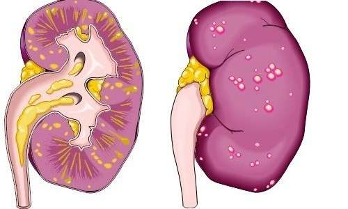 Паранефрит: симптоми і лікування