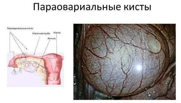 Параовариальная кіста: симптоми і лікування