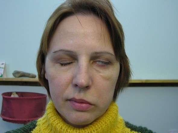 Парез лицьового нерва: симптоми і лікування