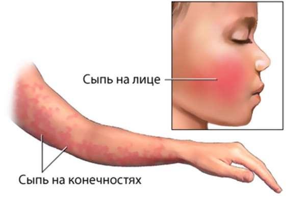 Парвовірус: симптоми і лікування