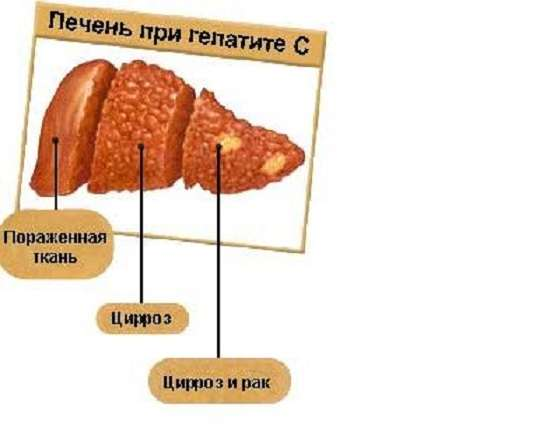 Гепатит С: симптоми і лікування