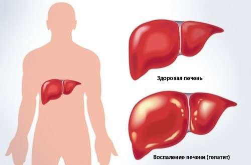 Криптогенний гепатит: симптоми і лікування