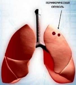 Периферичний рак легені: симптоми і лікування