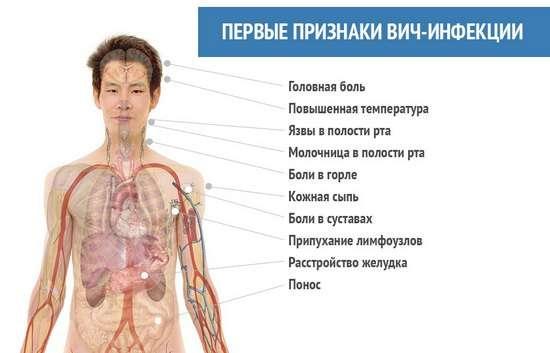 ВІЛ у жінок: симптоми і лікування