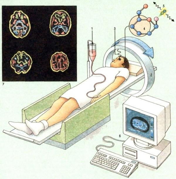 Пангіпопітуітарізм: симптоми і лікування