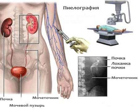 Нефролітіаз: симптоми і лікування