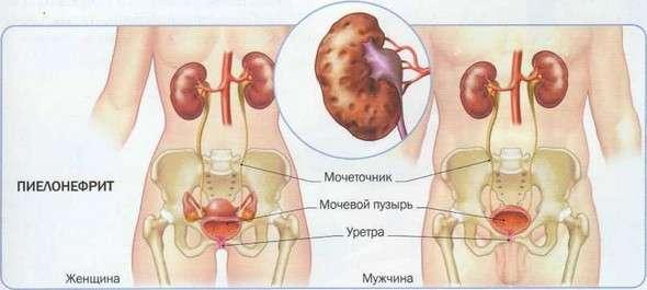 Запалення нирок: симптоми і лікування