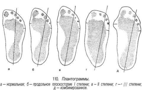 Поздовжнє плоскостопість: симптоми і лікування