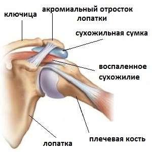 Плечолопатковий періартрит: симптоми і лікування