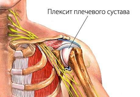 Плексит: симптоми і лікування