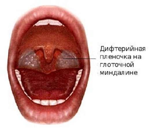 Дифтерія: симптоми і лікування
