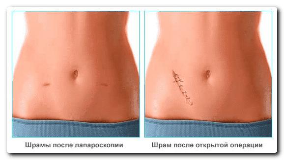 Ангиосаркома: симптоми і лікування