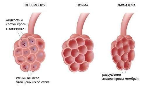 Атипова пневмонія: симптоми і лікування