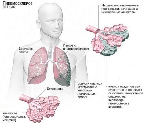 Пневмосклероз: симптоми і лікування