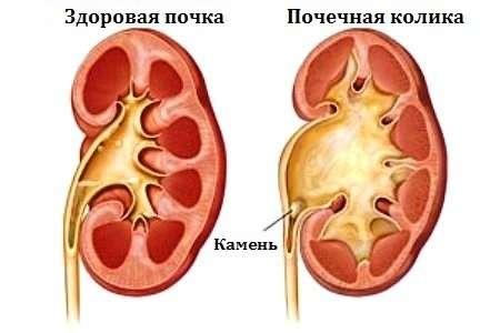 Ниркова коліка: симптоми і лікування
