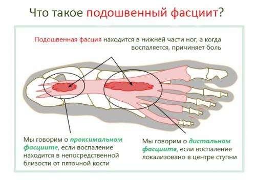 Підошовний фасциит: симптоми і лікування
