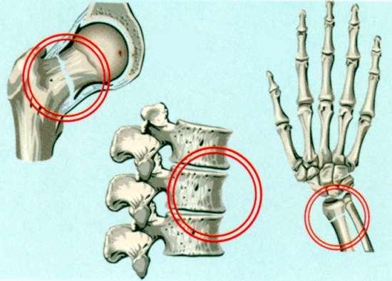 Остеопороз: симптоми і лікування