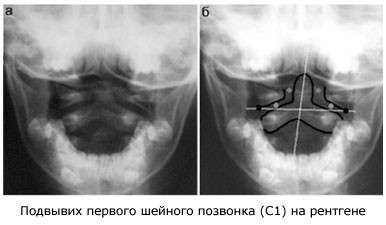 Підвивих шийного хребця: симптоми і лікування