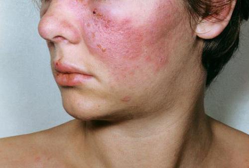 Колагеноз: симптоми і лікування