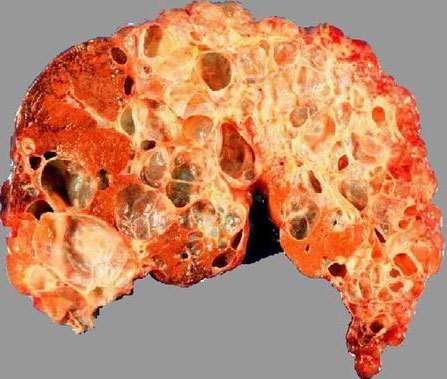Полікістоз печінки: симптоми і лікування
