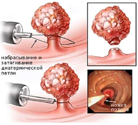 Поліпи прямої кишки: симптоми і лікування