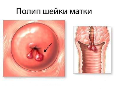 Поліп шийки матки: симптоми і лікування