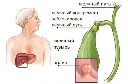 Поліпоз жовчного міхура: симптоми і лікування