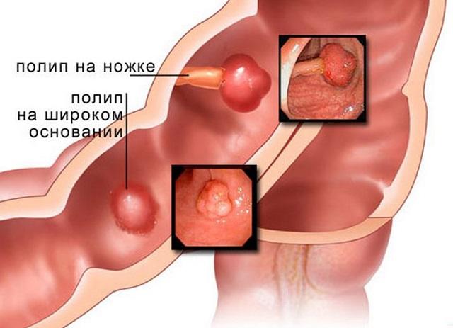 Поліп товстої кишки: симптоми і лікування