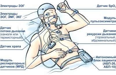 Гіперсомнія: симптоми і лікування