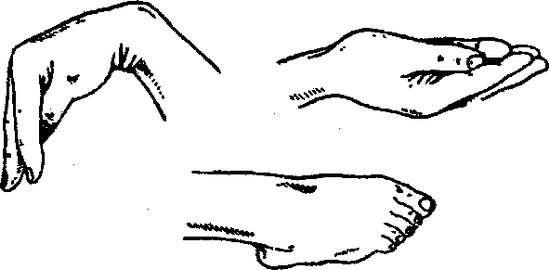 Тетанія: симптоми і лікування