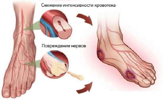 Діабетична стопа: симптоми і лікування