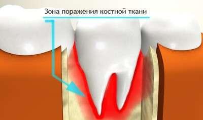 Остеомієліт щелепи: симптоми і лікування