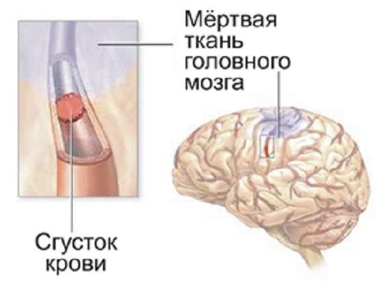 Атеросклероз: симптоми і лікування